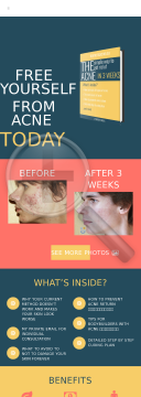 No Acne Ebook In 3 Weeks | Revolution 2015 preview. Click for more details